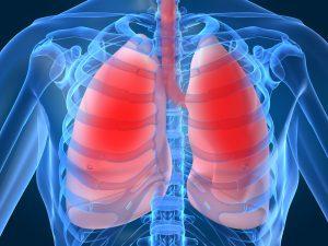 Акція«Дні профілактики туберкульозу та хронічних захворювань органів дихання у населення»